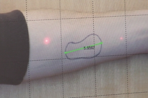 Fake Arm Wound with laser scale